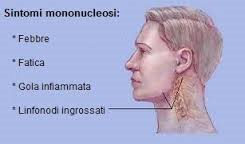 SintonoMononucleosi